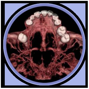 cirugia-oral-6