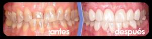 img-protesis-3