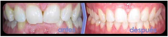 ortodoncia-brackets-2