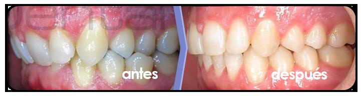 ortodoncia-brackets-3