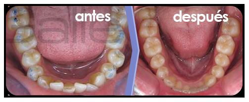 ortodoncia-brackets-4