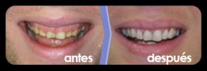 periodoncia gingivoplastia