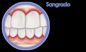 periodoncia-sangrado