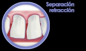 periodoncia-separacion